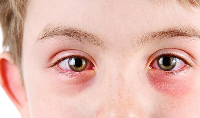 allergicoculardiseases